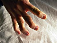 Freaky zombie fingers